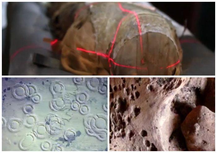 Rakovina ve starověkém Egyptě