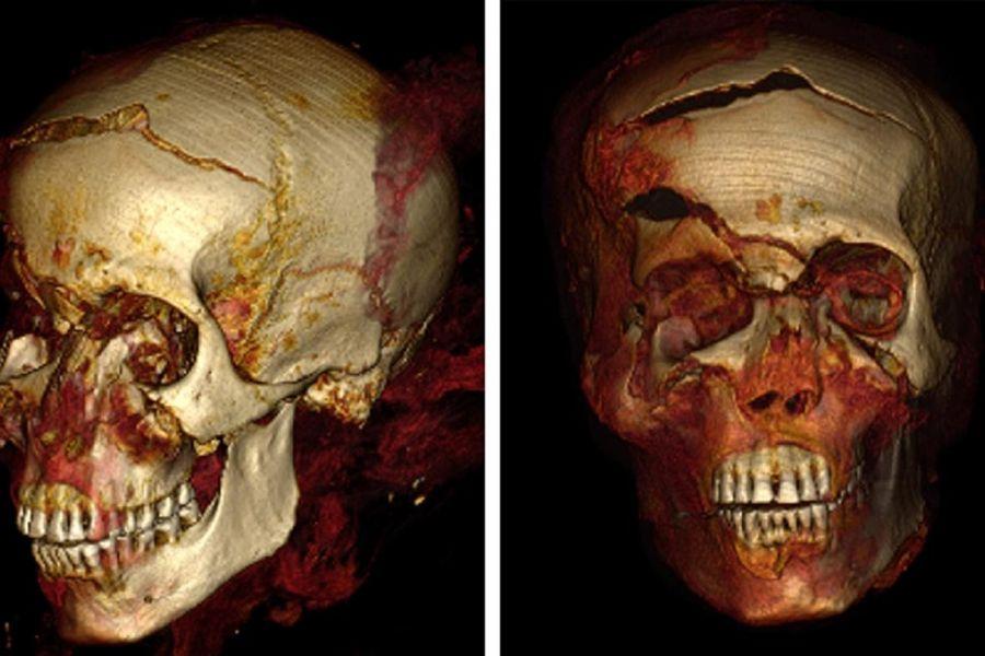 Zkoumání mumie Sekenenre Taa - lebka faraona