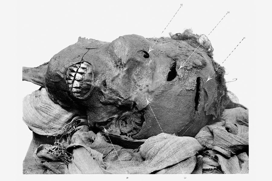 Mumie Senakhtenrea Taa s vyznačenými poraněními lebky