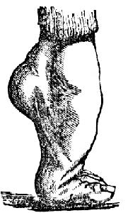 Zkoumání mumie Tutanchamona odhalilo, koňská noha